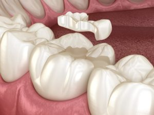 inlay on tooth