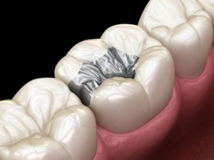 Silver inlay on white tooth