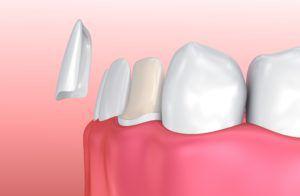 Porcelain veneer preparation and application