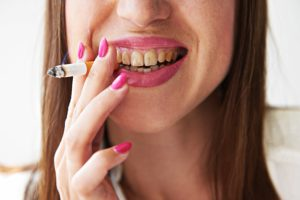 woman smoking with stained teeth
