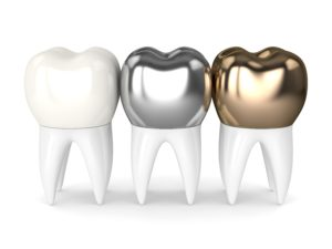 three different types of dental crowns