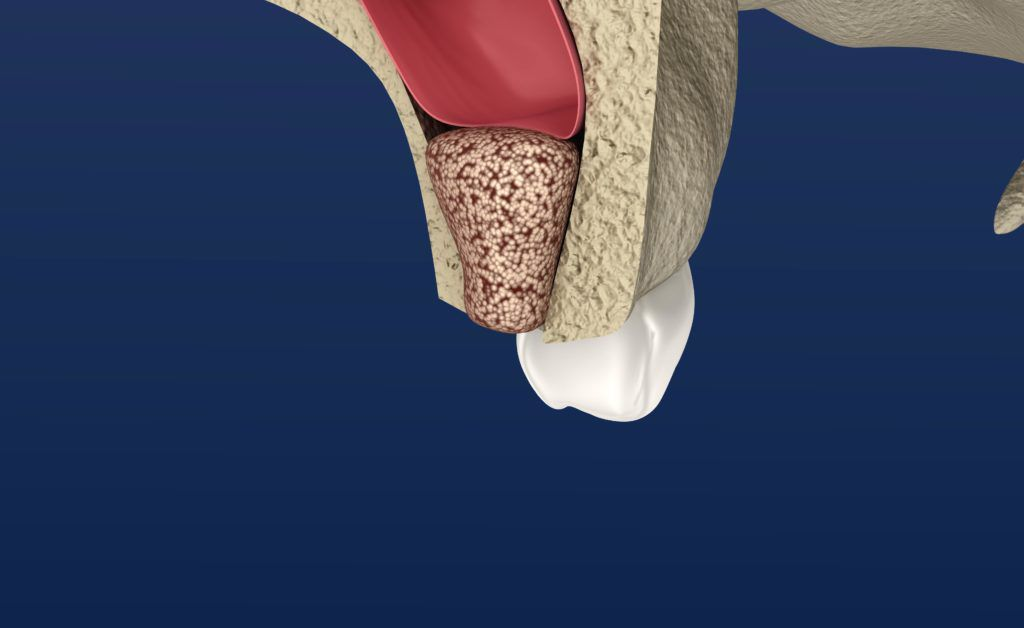 Computerized image showing bone material being placed in the upper jaw to lift the sinus cavity