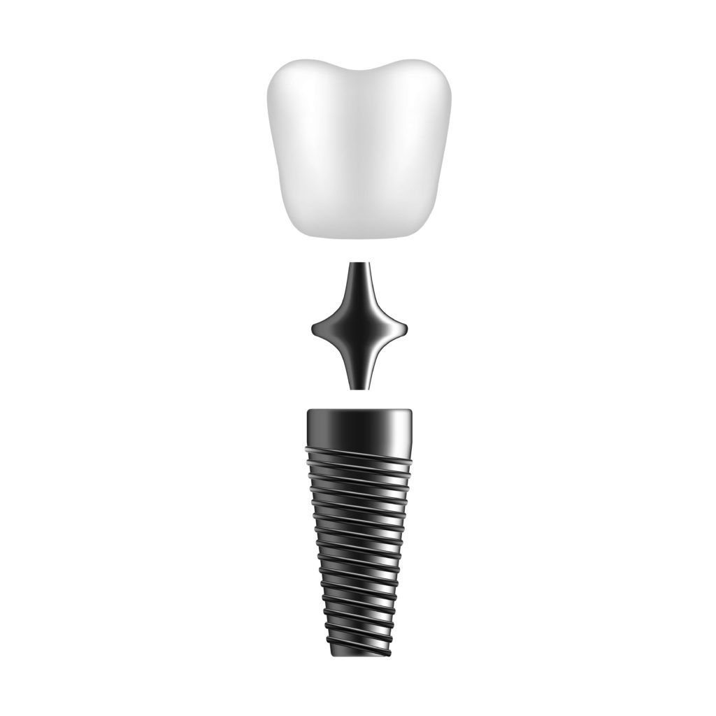 three piece dental implant