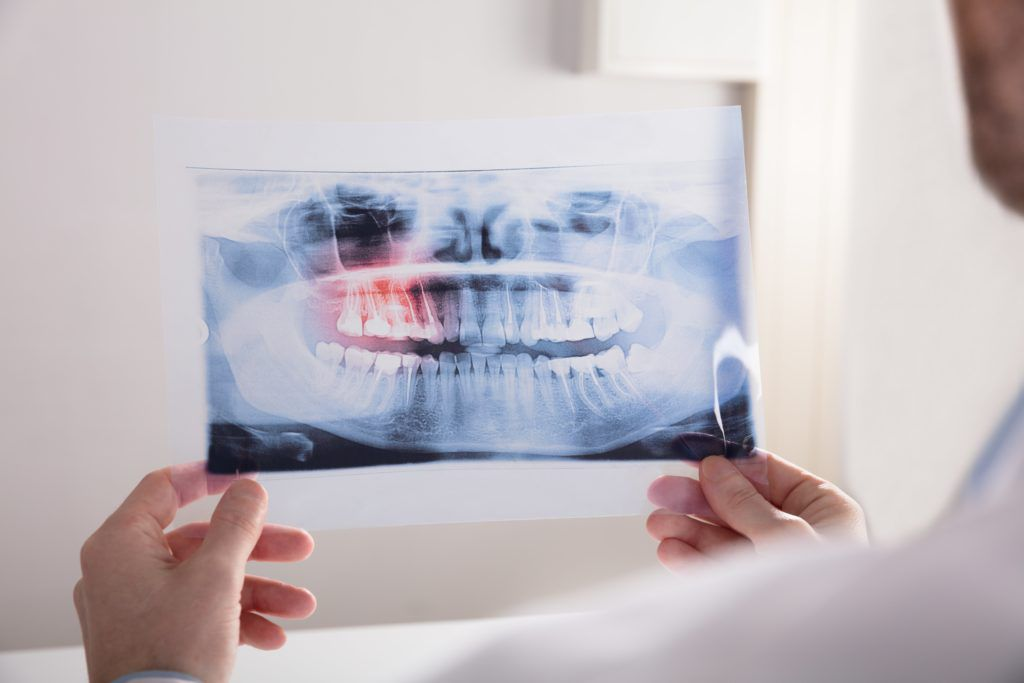 Dentist holding and looking at a dental xray
