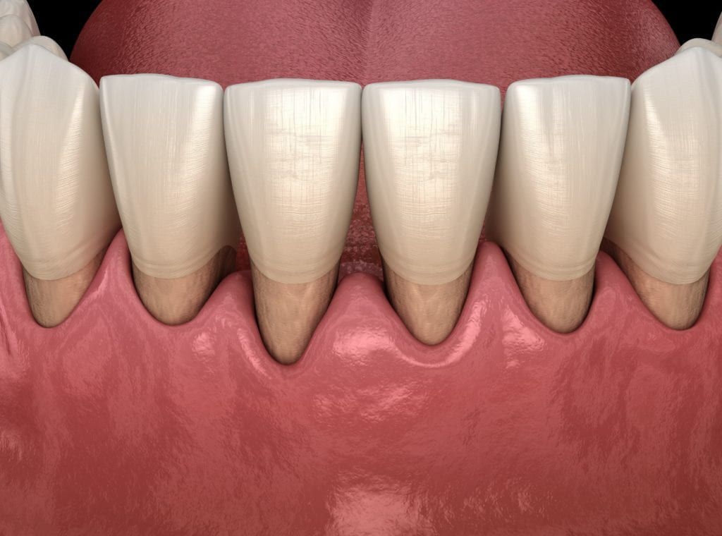 black triangle caused by gum recession