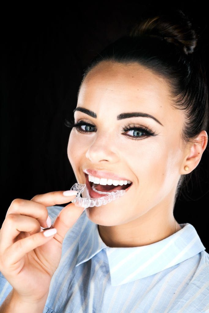 Beautiful woman placing a clear orthodontic aligner into her mouth