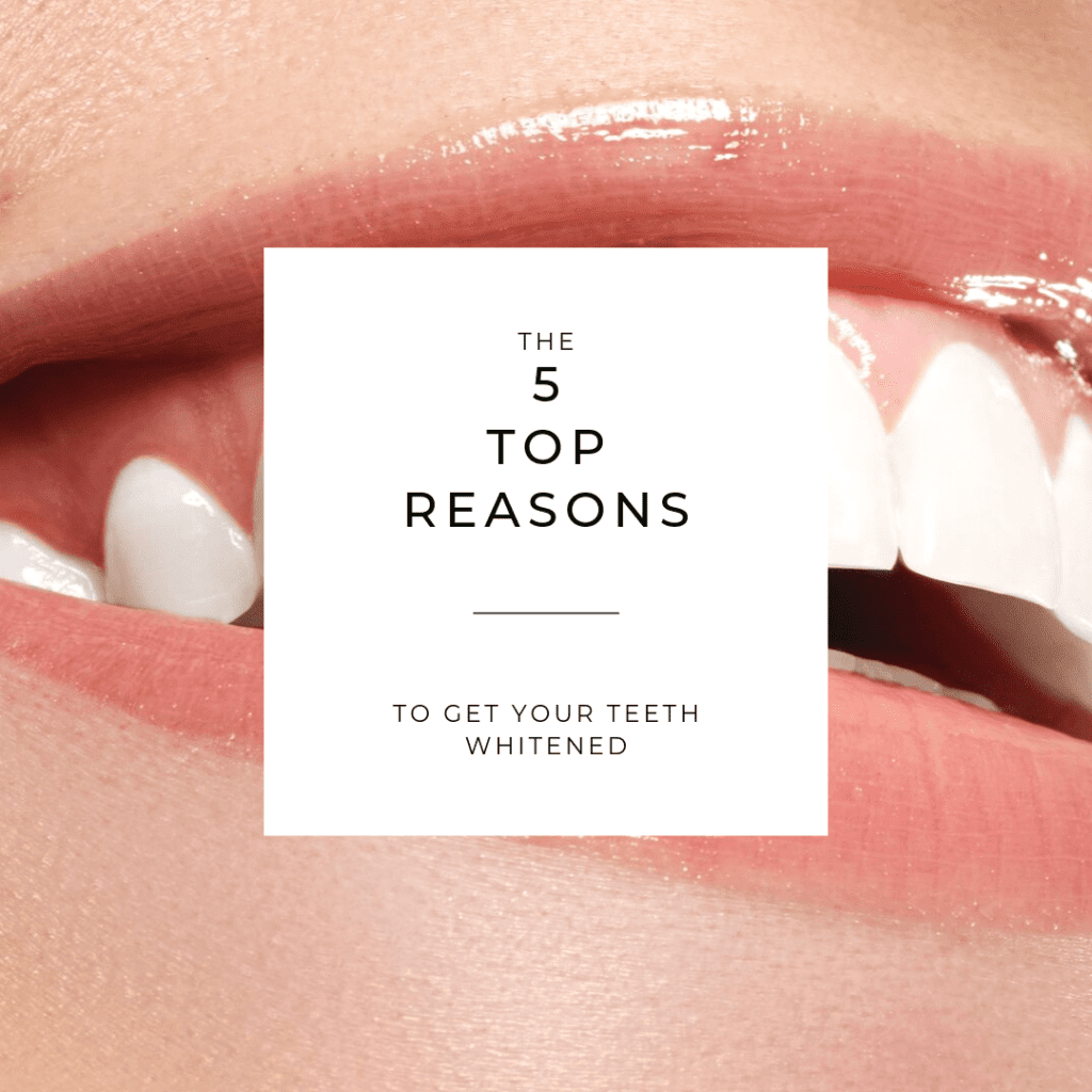 "Title banner for ""the top 5 reasons to get your teeth whitened"""