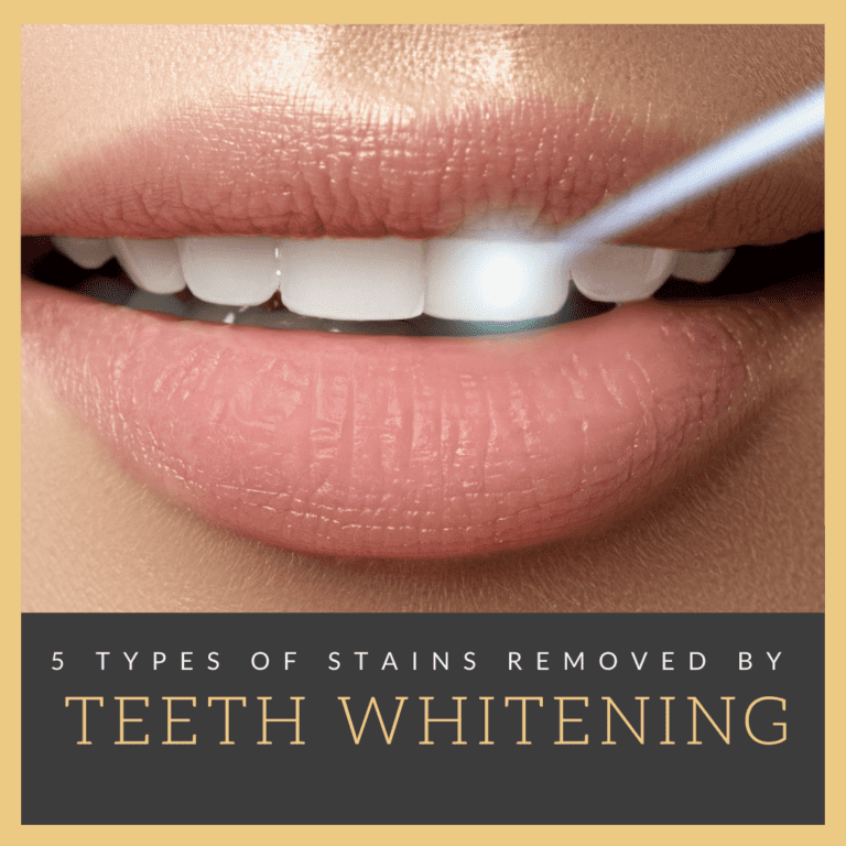 "Title banner for ""5 Types of Stains Removed by Teeth Whitening"""