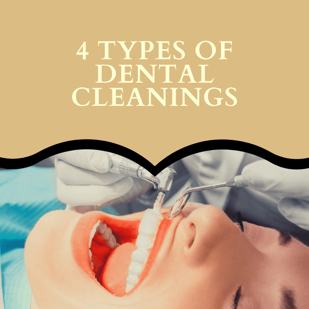 "Title banner for ""4 types of dental cleanings"""