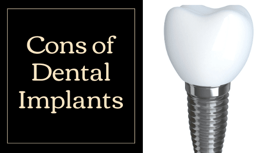 Cons of dental implants