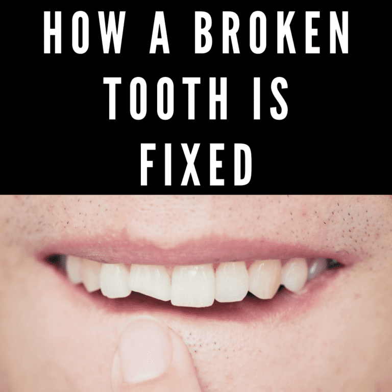 "Title banner for ""How a Broken Tooth is Fixed"""