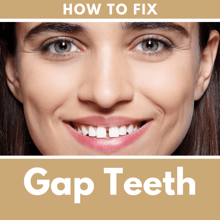 "Title banner for ""How to Fix Gap Teeth"""