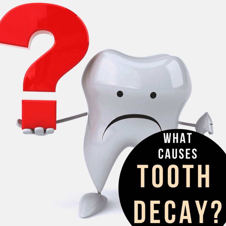 "Title banner for ""What Causes Tooth Decay_"""