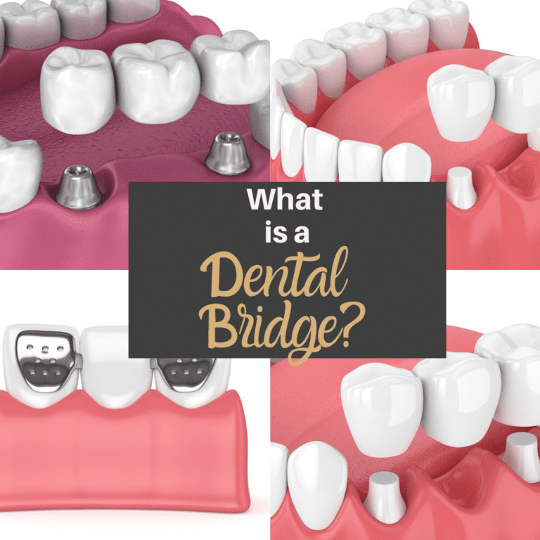 "Title banner for ""What is a Dental Bridge"""