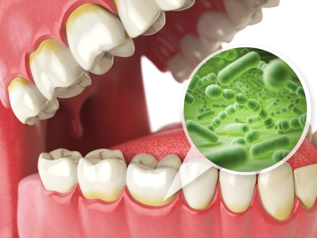 Bacteria that causes tooth decay shown in plaque