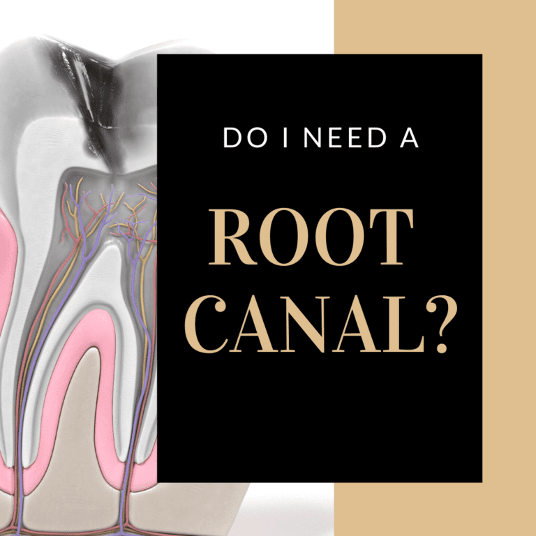 "Title banner for ""Do I Need a Root Canal"""