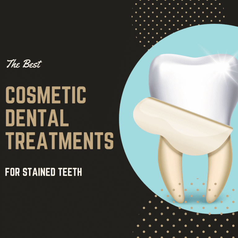 "Title banner for ""The Best Cosmetic Dental Treatments for Stained Teeth"""