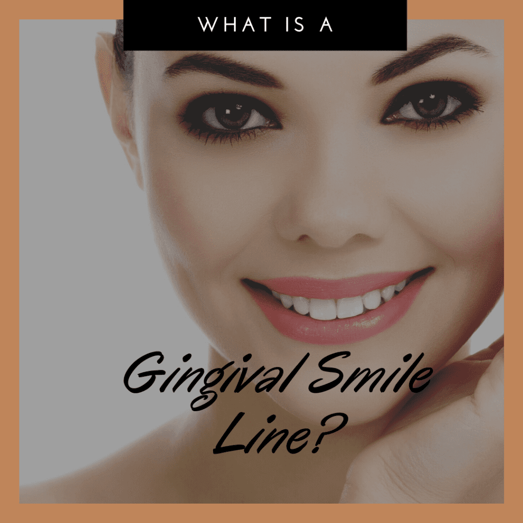 What is a Gingival Smile Line?