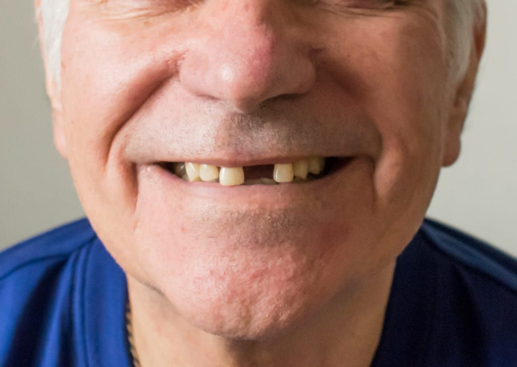 Old man smiling with missing front tooth