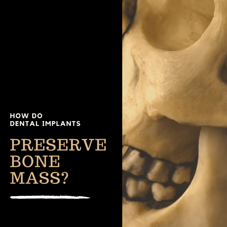How Do Dental Implants Preserve Bone Mass?