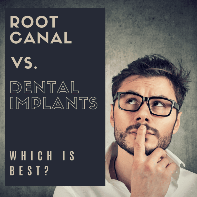 Root Canal vs. Dental Implants: Which is Best?