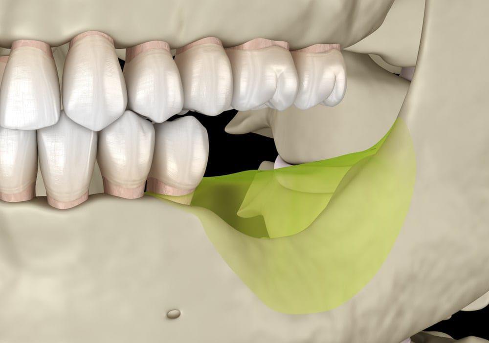 bone resorption in jawbone