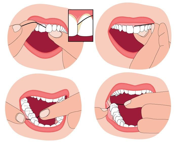 diagram showing where to floss