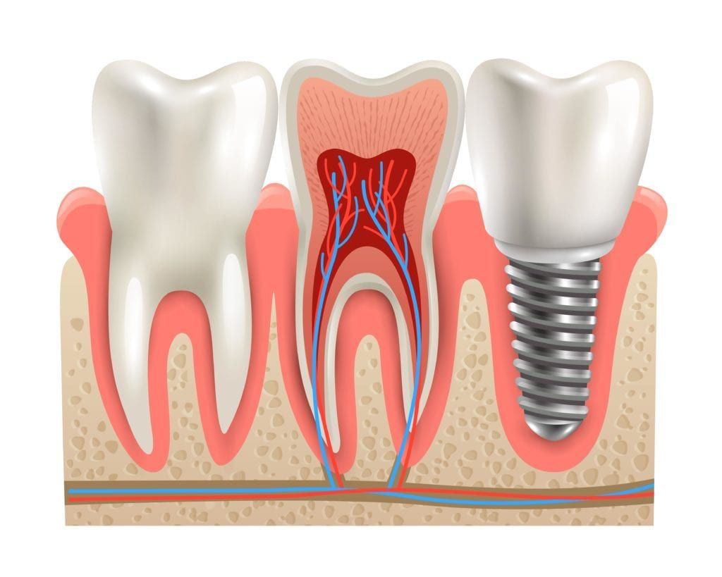 dental implant surrounded by real teeth