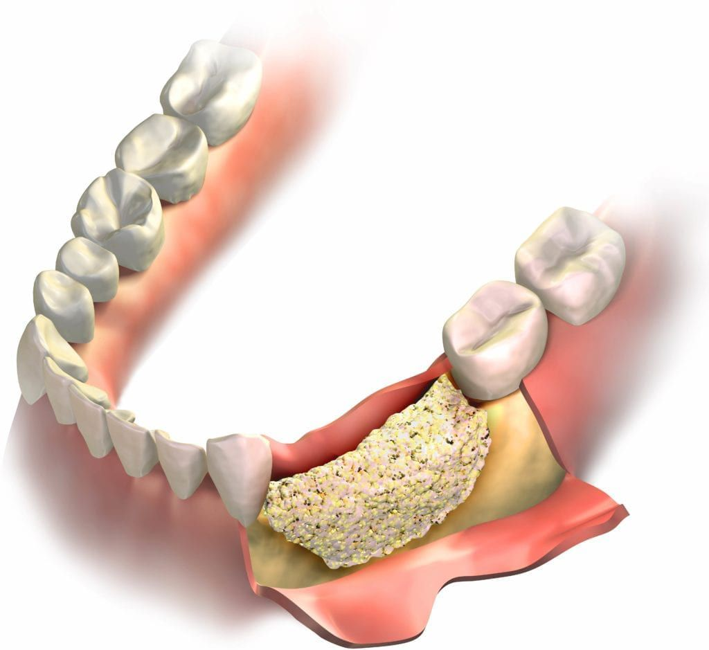 bone graft in jawbone