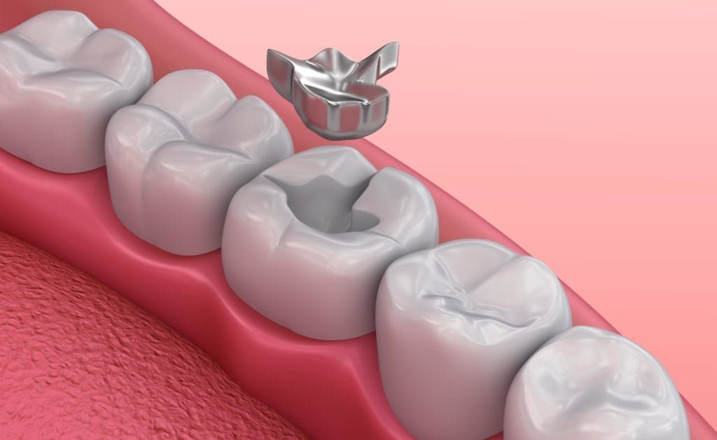 metal filling shown being put in tooth
