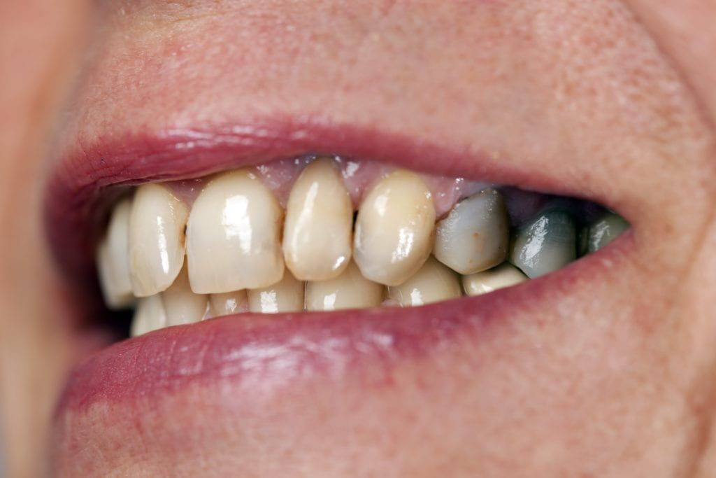 teeth stained from metal fillings