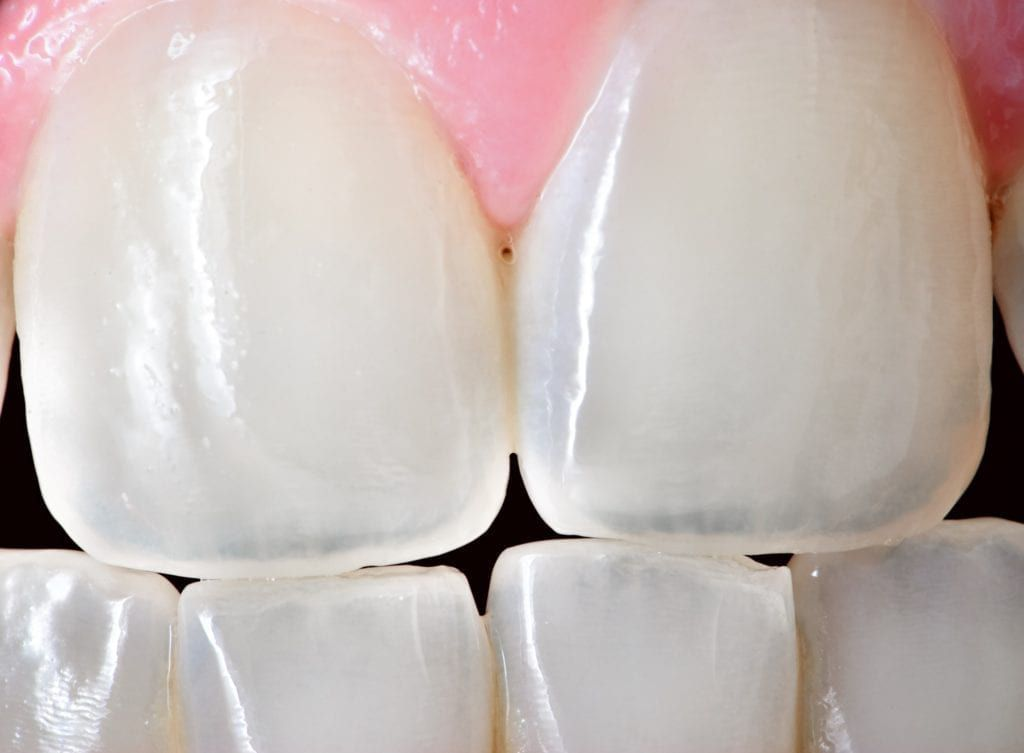 close up of teeth with translucent tips