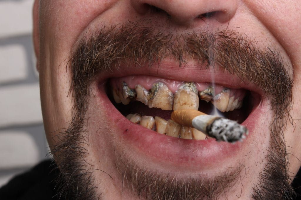 man with disgusting smoker's teeth