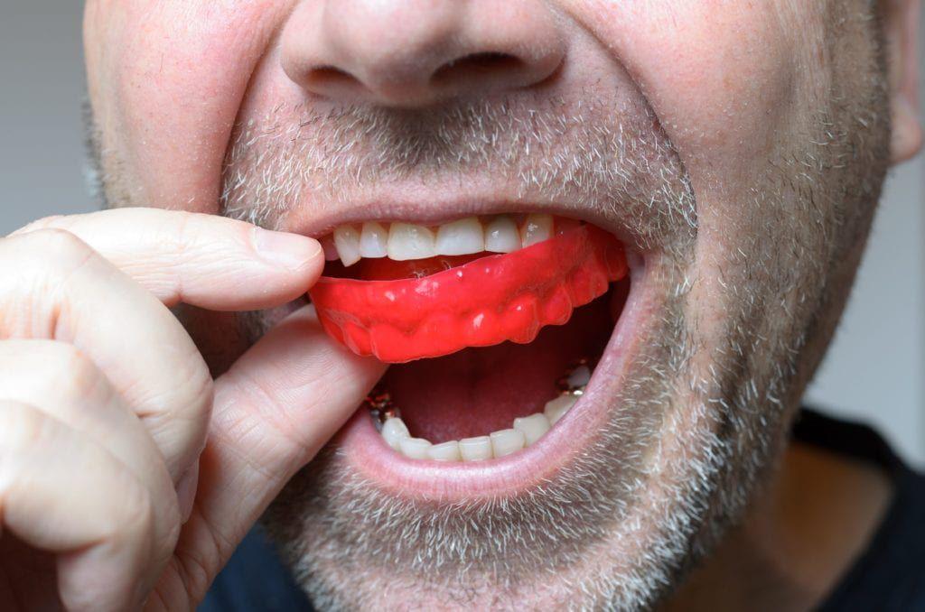 man wearing mouthguard