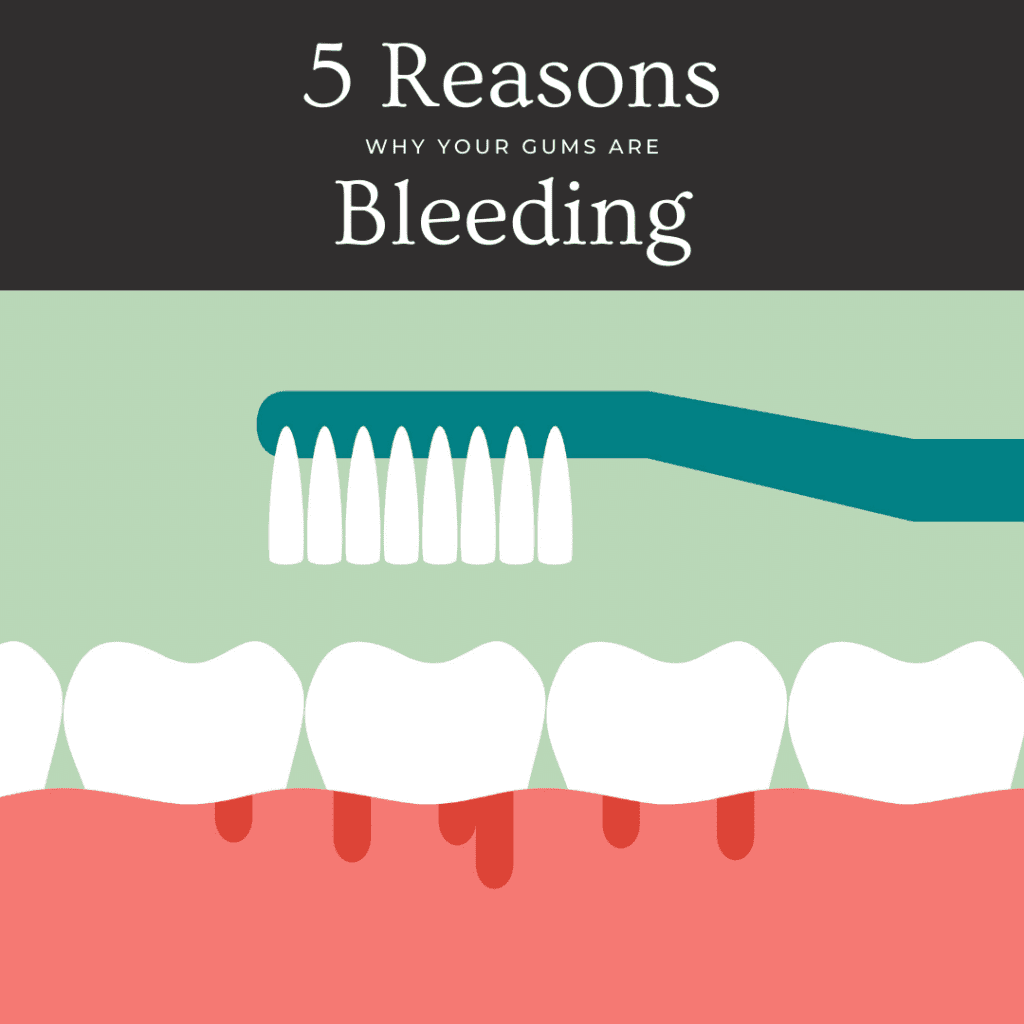 5 Reasons Why Your Gums Are Bleeding