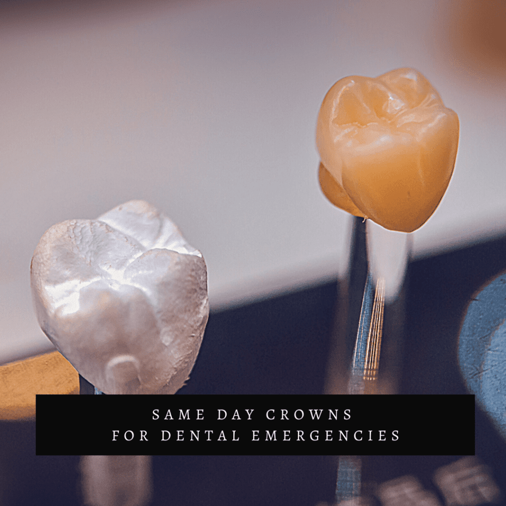Same Day Crowns for Dental Emergencies