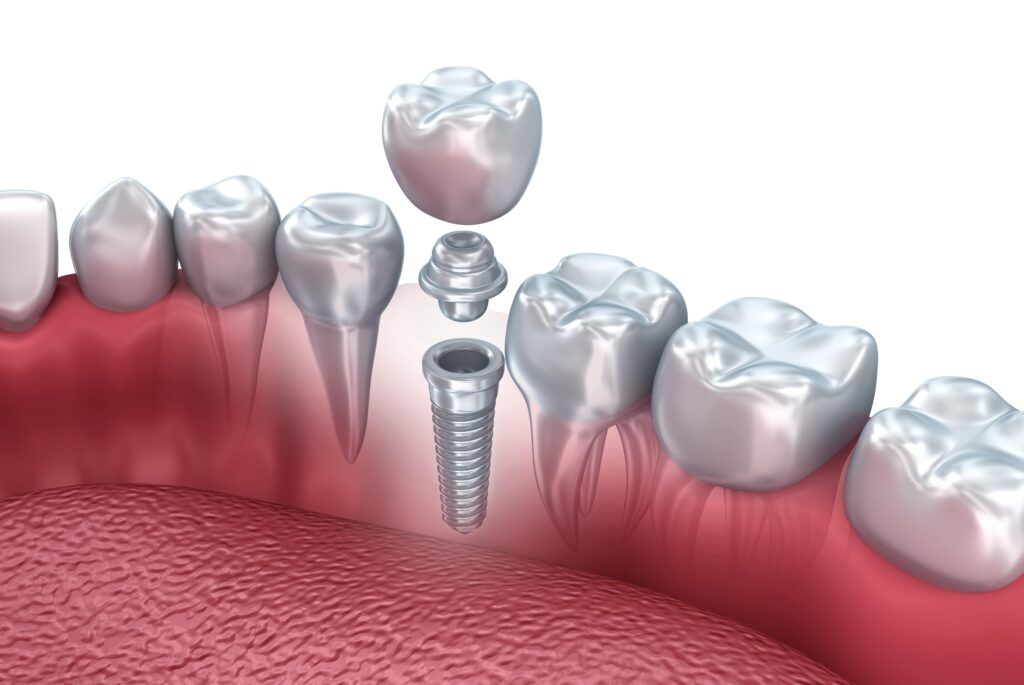 dental implant in pieces shown next to natural teeth