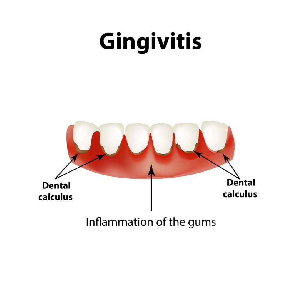 gingivitis diagram