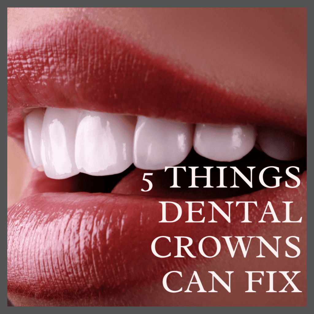 5 Things Dental Crowns Can Fix