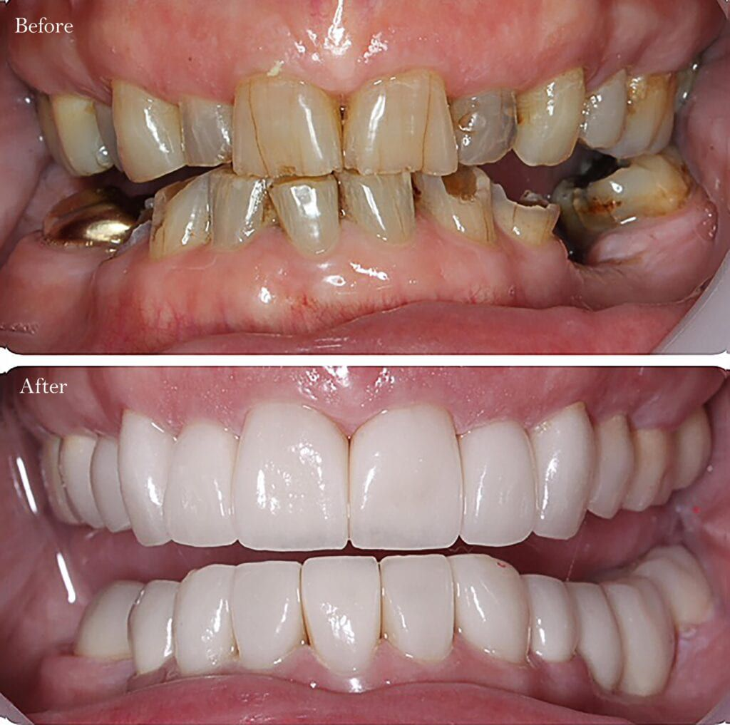 decayed teeth before and after crowns