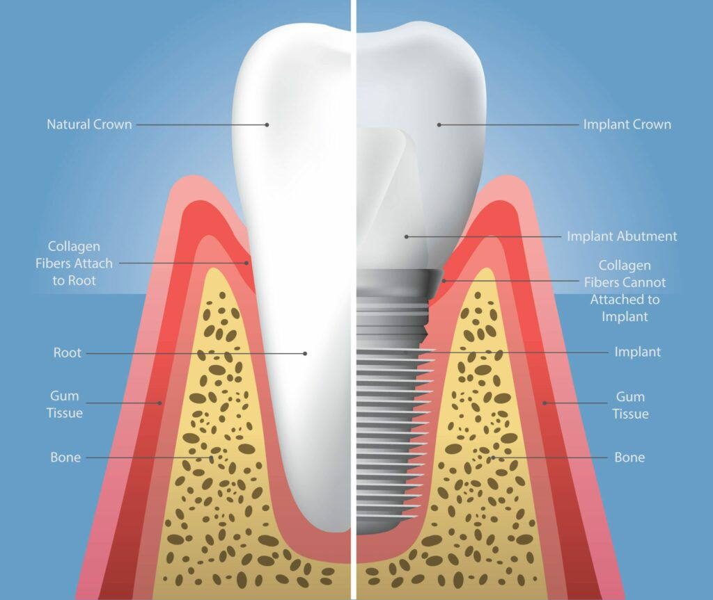 natural tooth vs dental implant