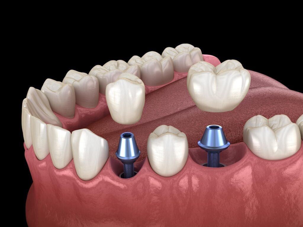 dental implants shown in mouth