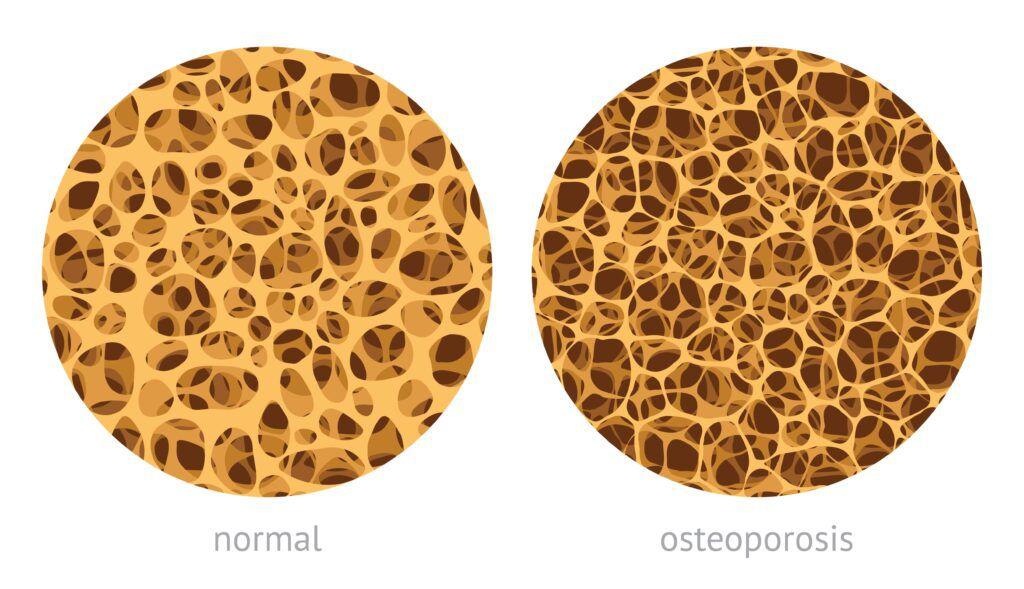 normal bone vs. bone with osteoporosis