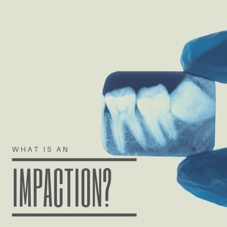 What is an Impaction?